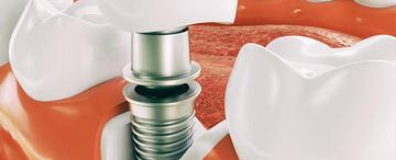 Einbringen einer künstlichen Zahnwurzel